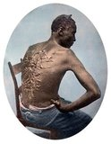 Gordon, or Whipped Peter, was a slave on a Louisiana plantation who made his escape from bondage in March of 1863 and went on to serve as a soldier in the United States Colored Troops.<br/><br/>  The photographs showing Gordon's flagellation scars were frequently used by abolitionists throughout the United States and internationally. In July of 1863 these images appeared in an article about Gordon published in Harper's Weekly, the most widely read journal during the Civil War.<br/><br/>  The pictures of Gordon's scourged back provided Northerners with visual evidence of brutal treatment of slaves and inspired many free blacks to enlist in the Union Army.